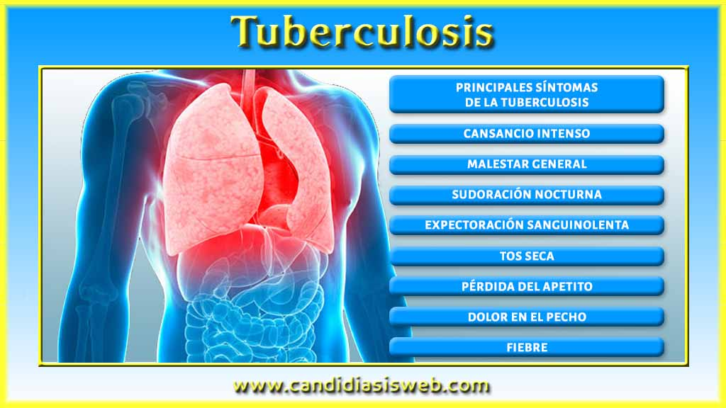 introduction tuberculosis Introduction to tuberculosis vdh tb control and prevention program 2011 introduction to tuberculosis - powerpoint ppt presentation by joey follow user.